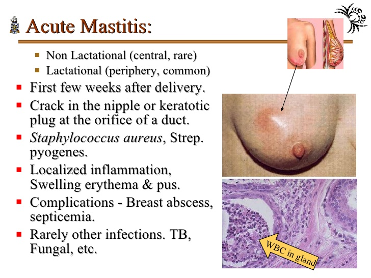Home Remedies that work for Mastitis while breastfeeding