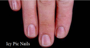 nails and health issues